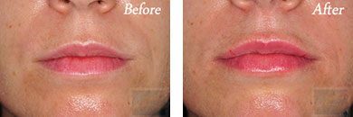 Restylane - Before after gallery image 1