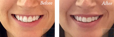 Restylane - Before after gallery image 2