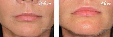 Restylane - Before after gallery image 4