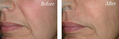 Restylane - Before after gallery image 5