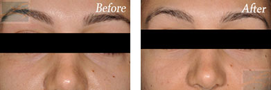 Restylane - Before after gallery image 6