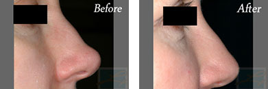 Restylane - Before after gallery image 8