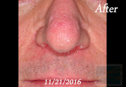 Lupo Center for Aesthetic and General Dermatology Fractional CO2 Resurfacing New Orleans - Case 18, After