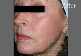 Fractional CO2 Resurfacing New Orleans - Case 2, After