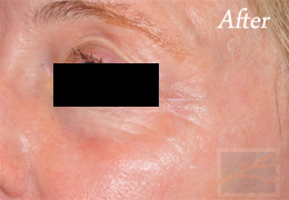 Fractional CO2 Resurfacing New Orleans - Case 5, After