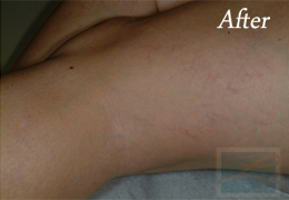 Sclerotherapy New Orleans - Case 10, After