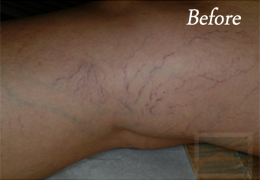 Sclerotherapy New Orleans - Case 10, Before