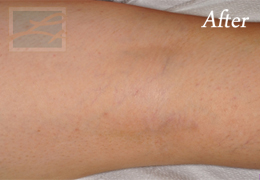 Sclerotherapy New Orleans - Case 12, After