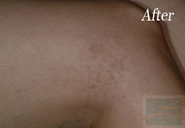 Sclerotherapy New Orleans - Case 3, After