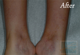 Sclerotherapy New Orleans - Case 4, After