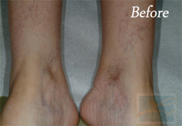 Sclerotherapy New Orleans - Case 4, Before