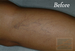 Sclerotherapy New Orleans - Case 5, Before