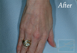 Sclerotherapy New Orleans - Case 7, After