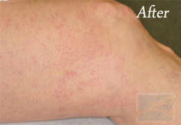 Sclerotherapy New Orleans - Case 8, After