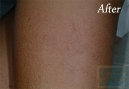 Sclerotherapy New Orleans - Case 9, After