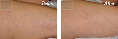 Sclerotherapy - Before after gallery image 1