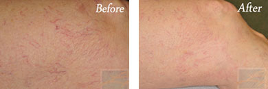 Sclerotherapy - Before after gallery image 10