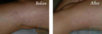 Sclerotherapy - Before after gallery image 12