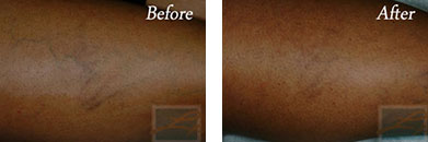 Sclerotherapy - Before after gallery image 4