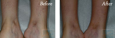 Sclerotherapy - Before after gallery image 6