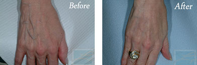 Sclerotherapy - Before after gallery image 9