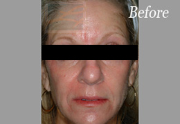 Sculptra New Orleans - Case 1, Before