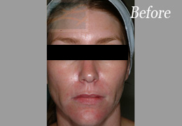 Sculptra New Orleans - Case 12, Before