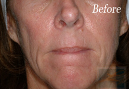 Sculptra New Orleans - Case 4, Before
