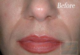 Sculptra New Orleans - Case 5, Before