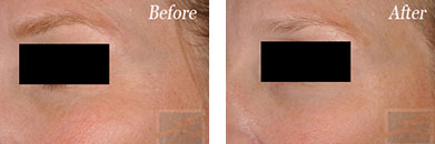 sculptra - Before after gallery image 12