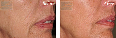 Fine Lines, Wrinkles & Folds - Before and After Case 38
