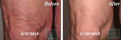 Sculptra Knees Before and After Case 4