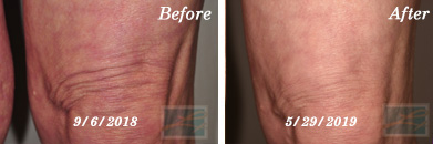 Sculptra Knees Before and After Case 3