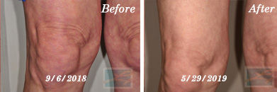 Sculptra Knees Before and After Case 1