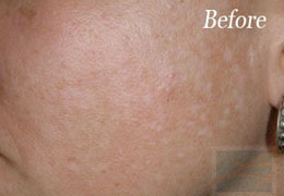 SilkPeel Dermal Infusion New Orleans - Case 1, Before