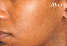 SilkPeel Dermal Infusion New Orleans - Case 10, After