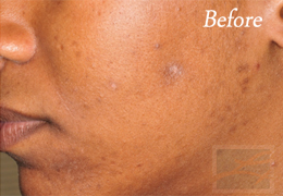 SilkPeel Dermal Infusion New Orleans - Case 10, Before