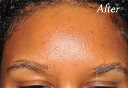 SilkPeel Dermal Infusion New Orleans - Case 11, After