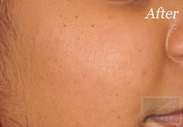 SilkPeel Dermal Infusion New Orleans - Case 12, After