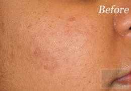 SilkPeel Dermal Infusion New Orleans - Case 12, Before