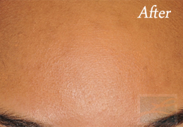 SilkPeel Dermal Infusion New Orleans - Case 13, After