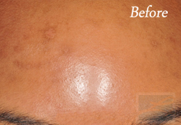 SilkPeel Dermal Infusion New Orleans - Case 13, Before