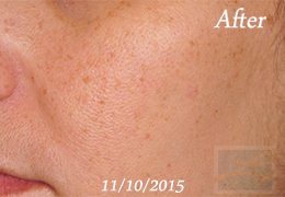 SilkPeel Dermal Infusion New Orleans - Case 14, After