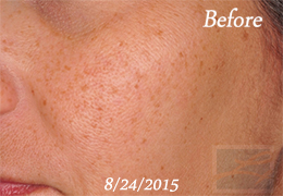 SilkPeel Dermal Infusion New Orleans - Case 14, Before