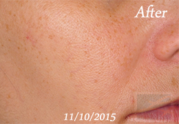 SilkPeel Dermal Infusion New Orleans - Case 15, After