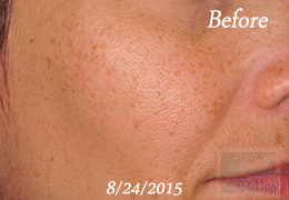 SilkPeel Dermal Infusion New Orleans - Case 15, Before