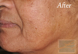 SilkPeel Dermal Infusion New Orleans - Case 3, After