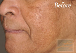 SilkPeel Dermal Infusion New Orleans - Case 3, Before