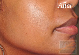 SilkPeel Dermal Infusion New Orleans - Case 4, After