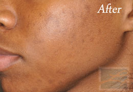 SilkPeel Dermal Infusion New Orleans - Case 5, After
